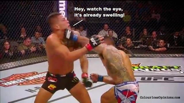 UFC 185 meme Dos Anjos Pettis