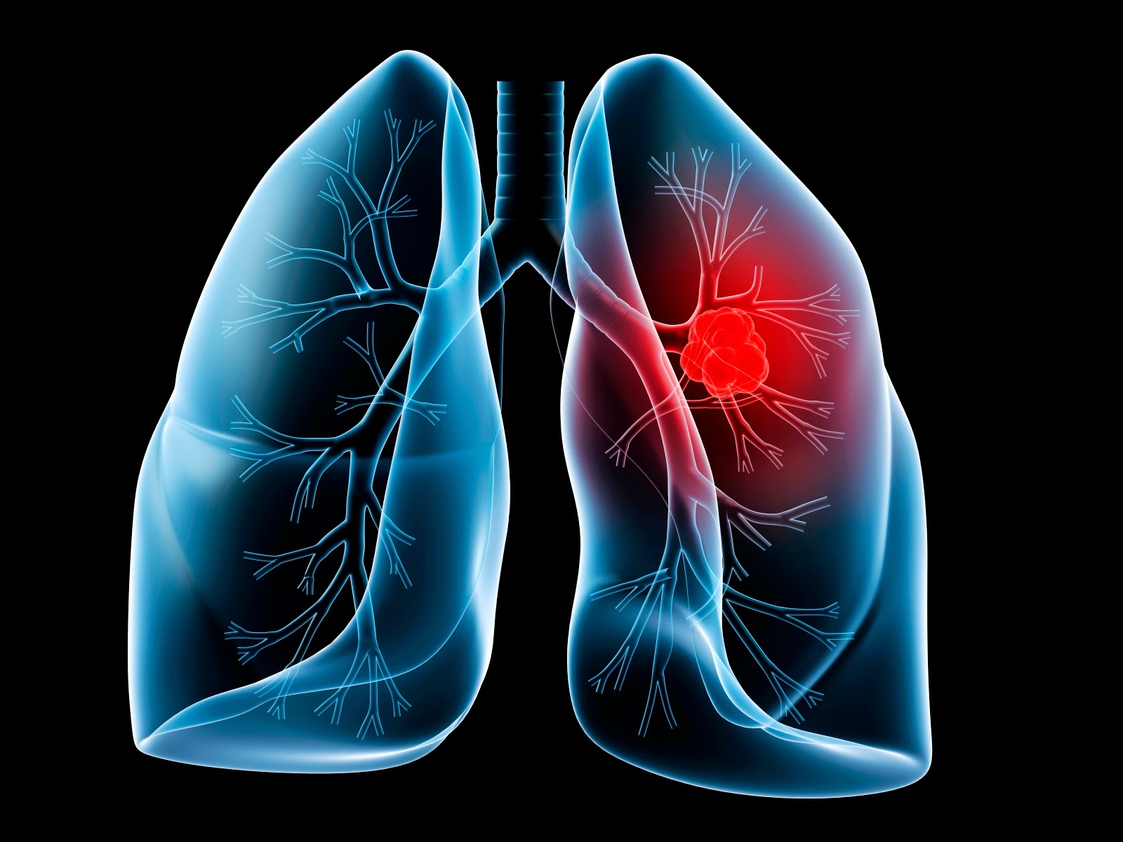 Medical Nanoparticles: Local Treatment Of Lung Cancer