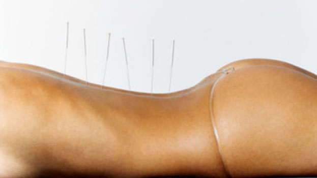 About Acupuncture And Its Popular Use