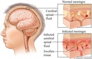 Obat Radang Otak Herbal