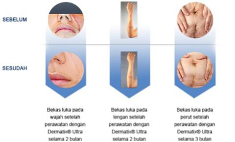 Cara Pakai Dermatix Ultra