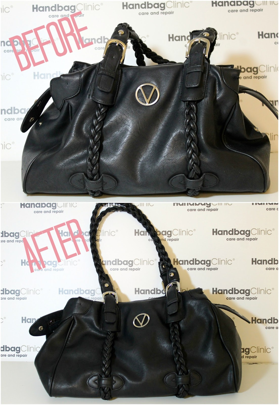handbag clinic before after