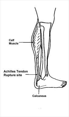 Achilles tendon anatomy diagram