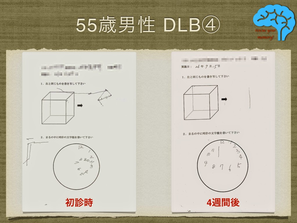 初期のレビー小体型認知症(DLB)④ 時計描画改善