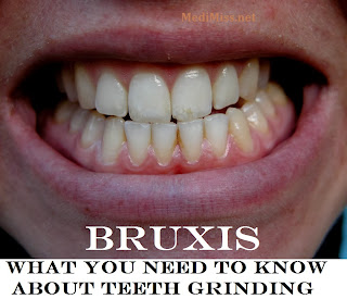 Bruxism: What You Need to Know About Teeth Grinding