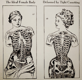 The Ideal Female Body / Deformed by Tight Corseting