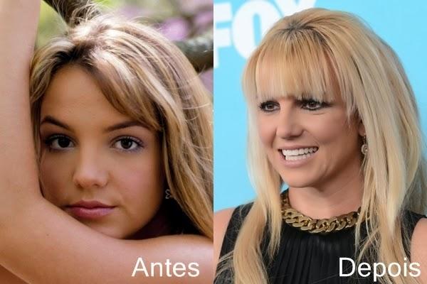 Antes e depois dos famosos- Britney Spears