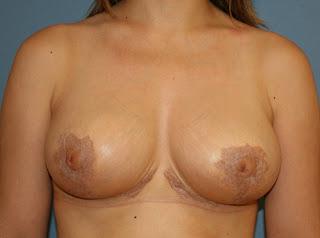 mastopexia_reducción_mamas_pecho_elevacion_cirujano_plastico
