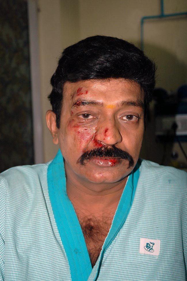 MAD ABOUT MOVIES: Hero Rajasekhar Injured photos