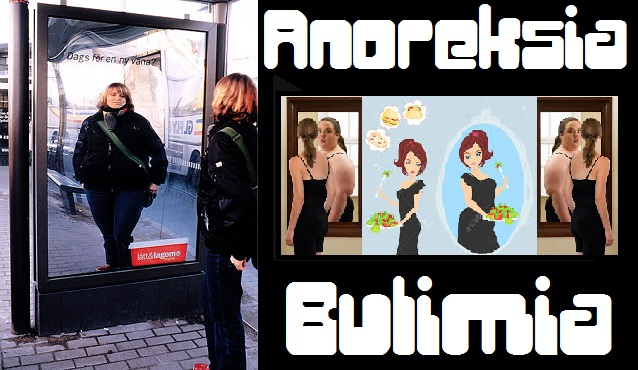 Tanda-Tanda Anoreksia Dan Bulimia