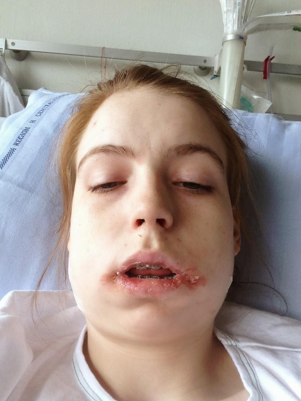 hævelse efter operation i munden