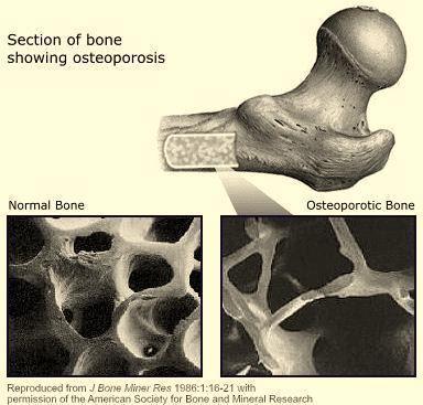 Osteoporosis, karena kekurangan kalsium