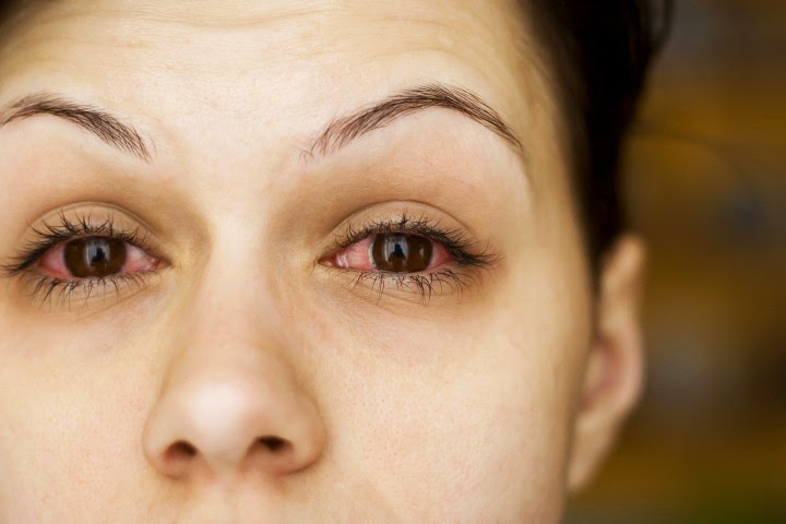 But If You Havent Been Diagnosed Puffy Or Crusty Eyes In The Morning May Indicate That Have An Undiagnosed Allergy