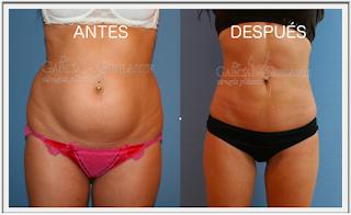 liposuccion_abdominoplastia_lipoescultura_cirujano_plastico