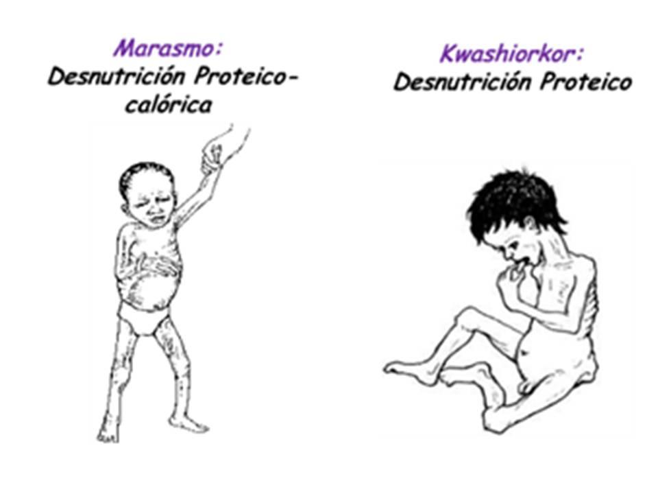 epidemiology of the kwashiorkor disorder essay