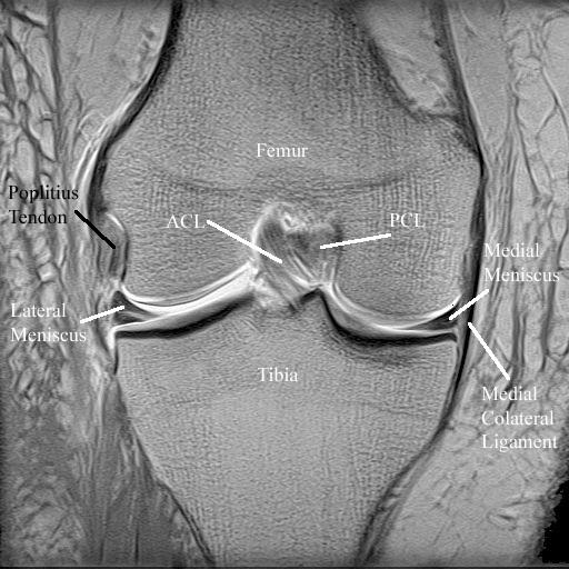 Poplitius Tendon In Coronal Knee Joint Mri Radiology Anatomy Images