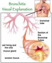 pengobatan tradisional penyakit bronkhitis
