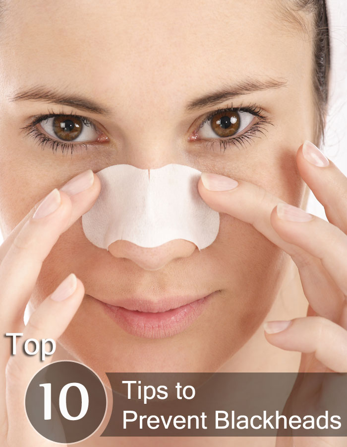 Top Ten Tips to Prevent Blackheads