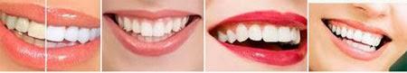 Cara Memutihkan Gigi Secara Alami dan Sehat Cara Memutihkan Gigi Secara Alami dan Sehat