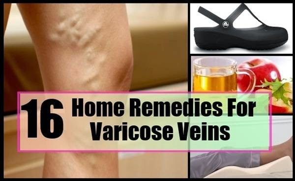 varicose veins causes, varicose veins surgery, varicose veins natural treatment, varicose veins preventions