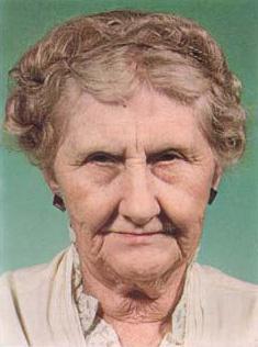 Foto de la señora con cuerno luego de extirpado