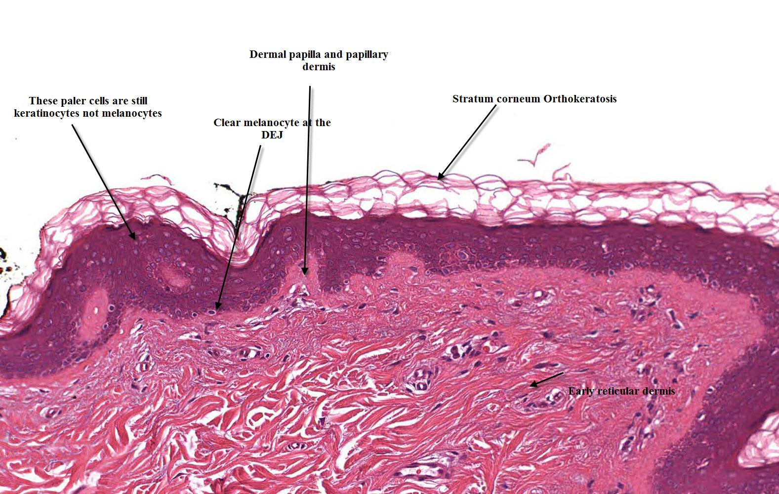Melanocyte Pathology - Homepage | Mooi