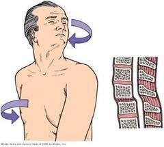 autonomic hyperreflexia pathophysiology | autonomic hyperreflexia, Skeleton