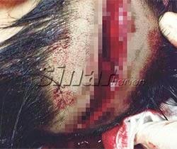 Thumbnail image for Pembantu Kedai Cedera Parah Ditetak Ah Long