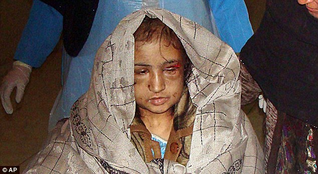 Torture Woman Afghan Girl