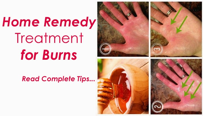 Home Remedy Treatment For Burns  B & G Fashion. Best Drama Schools In The World. Best Rv Insurance Rates Bad Designed Websites. Affordable Online College Courses. Hollywood Storage Center All Digital Services. Bank Of America Mobile Credit Card Processing. Schools For Healthy Lifestyles. Virtual Offices In London Blog Website Design. Free Residential Construction Leads