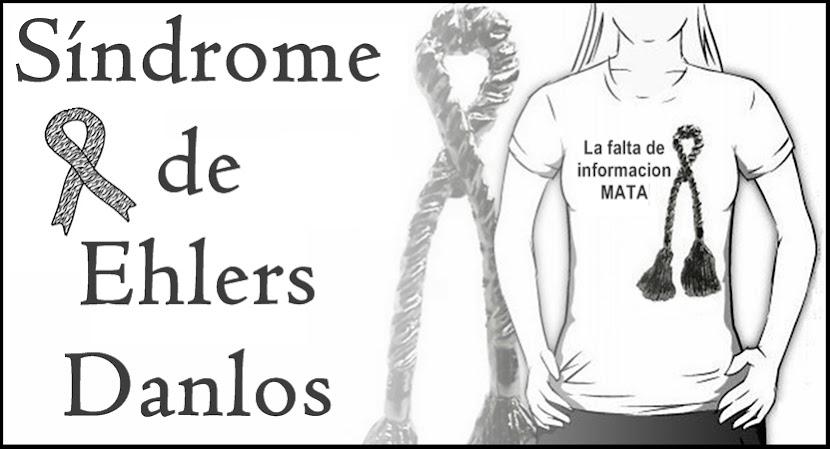 Síndrome de Ehlers Danlos