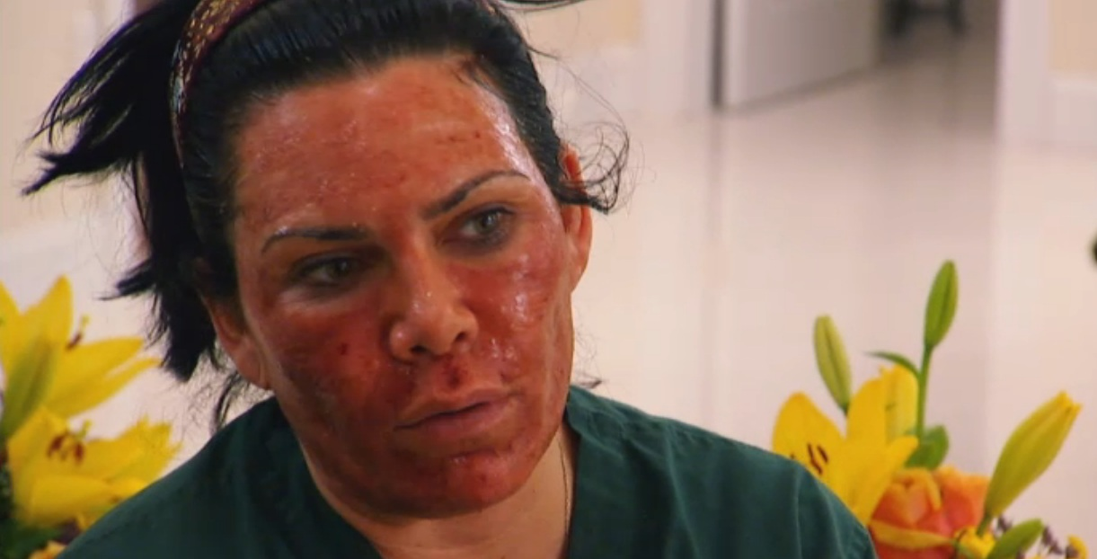mob wives renee graziano. Renee Graziano during healing