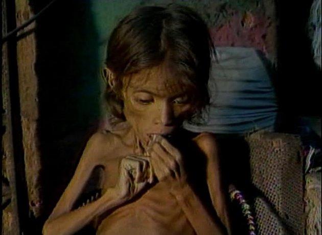 Resultado de imagem para fome nordeste anos 90