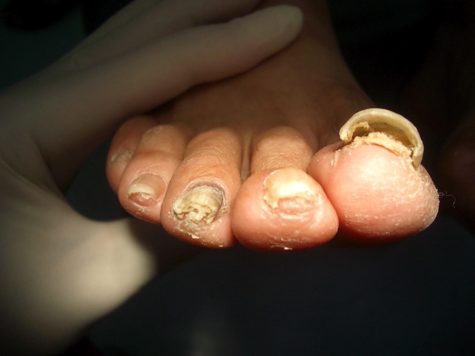Los medios del tratamiento del hongo de los pie y las uñas