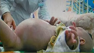 Chinese boys gives birth to brother