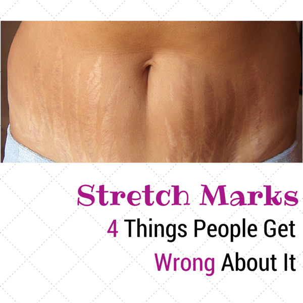 Read the 4 things people get wrong about stretch marks