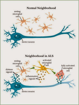 Bệnh ALS là gì?