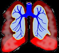 Comment vivre avec votre asthme