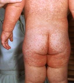 gambar penyakit campak