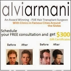 Follicular Unit Hair Transplant