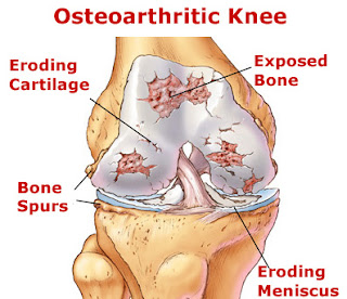What is Arthritis or Osteoarthritis?