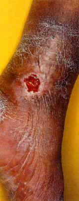 Los indicios de la trombosis de los vasos del hígado