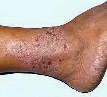 obat penyakit eksim tradisional