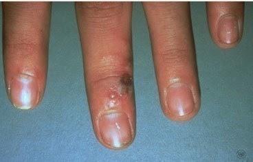 Herpes Simplex Virus - HSV