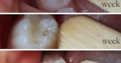 وداعا لطبيب الأسنان تخلصوا من تسوس أسنانكم بأنفسكم بفضل هذه الوصفة المدهشة