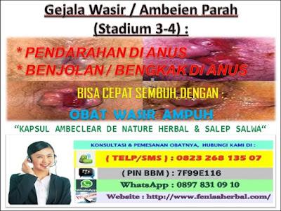 Obat Ambeien Pada Pria  _ Gejala Wasir / Ambeien Stadium 3 - 4