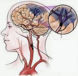 Minh họa tai biến mạch máu não