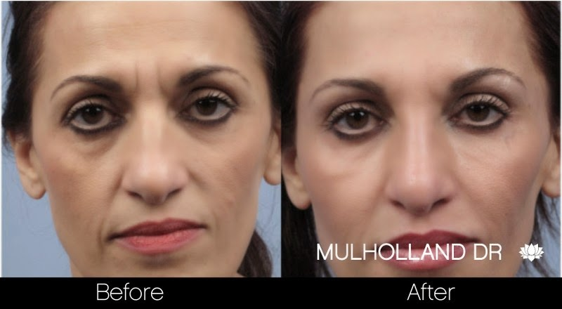 Before and after photo of a patient who had Botox