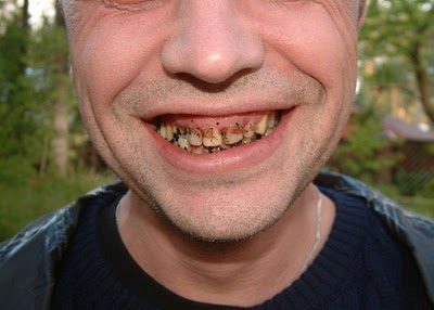 how to know if your tooth is rotting