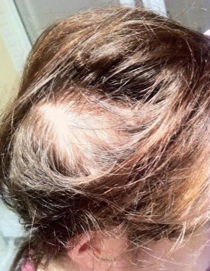 La reconstitución folikul el cabello